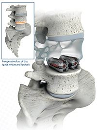 Spine Surgery Neurosurgery Minimally Invasive Spine