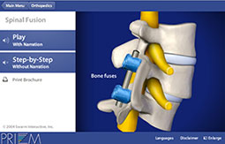 Fusion Greenwood Sc >> South Carolina Spine Center - Advanced spine care services ...